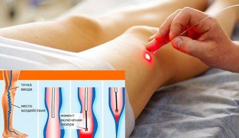 Достаточно популярной методикой лечения варикозного расширения вен считается применение лазера