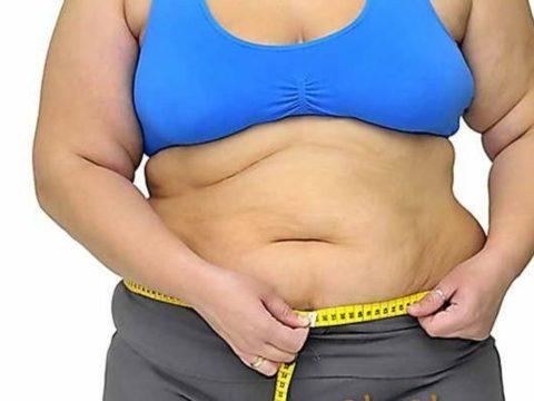 Ожирение - фактор риска варикоза