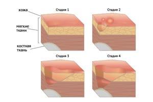 Развитие язвы проходит в несколько этапов.