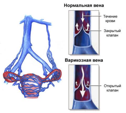 Чаще всего на фоне синдрома венозного полнокровия диагностируются расширения вен яичников и круглой связки матки