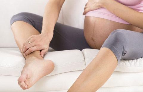 Фото: Беременность и варикозная болезнь.