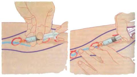 Хирургическое лечение варикоза - склеротерапия