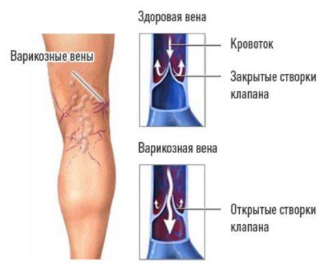Как работают венозные клапаны