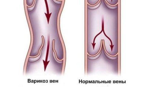 Как развивается варикоз малого таза