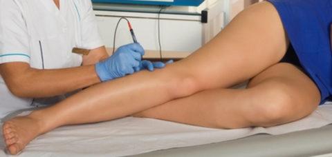 Терапия лазером поможет избавиться от эстетических проявлений варикоза вен