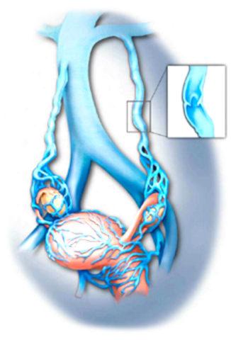 Матка является органом, подверженным варикозу