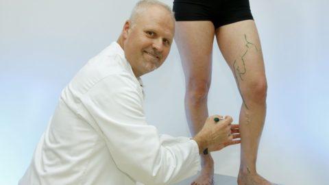 Мужчины меньше переживают из-за венозных узелков на коже, чем женщины