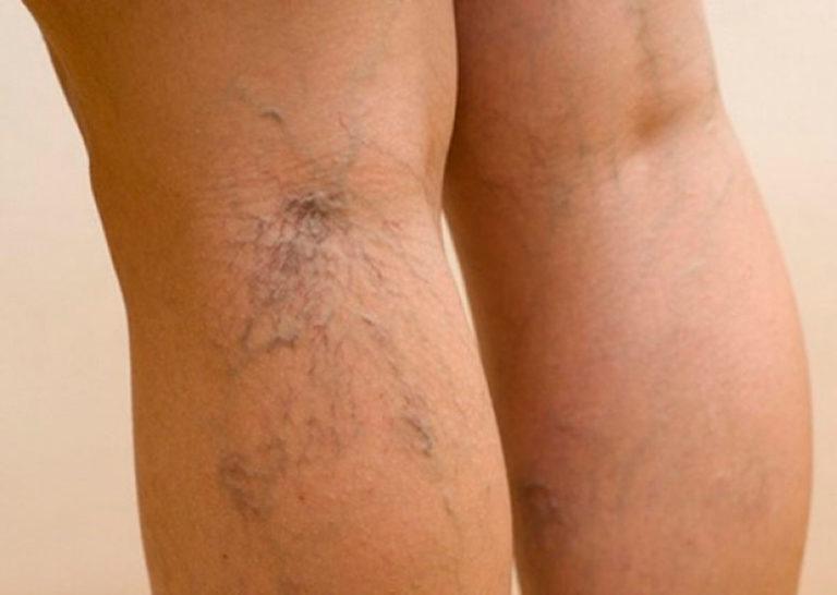 Варикозное расширение вен ног в домашних условиях