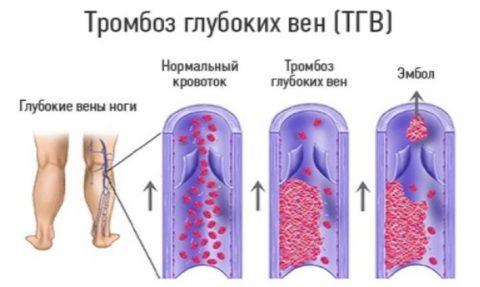 Образование тромба в глубокой вене нижних конечностей