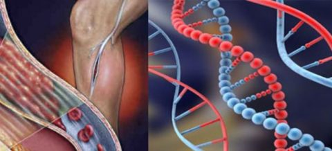 Генетическая патология, приводящая к серьезным осложнениям