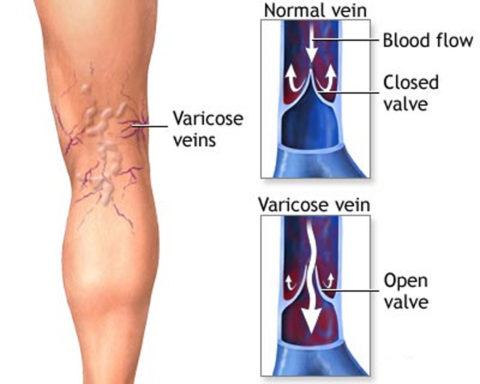 Общий вид варикозных изменений в венозных сосудах