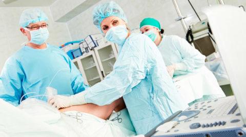 Операция – надежный способ излечения варикоза