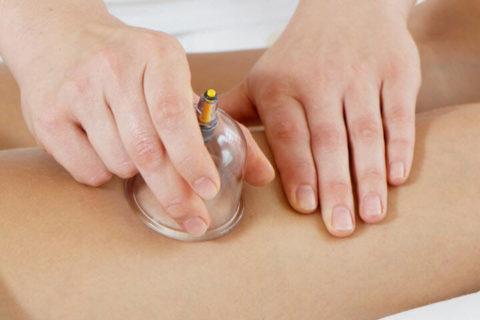 Применение банок для массажа при варикозе запрещено