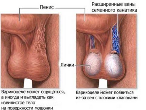 Признаки варикоцеле