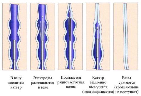 Схема проведения радиочастотной коагуляции вены