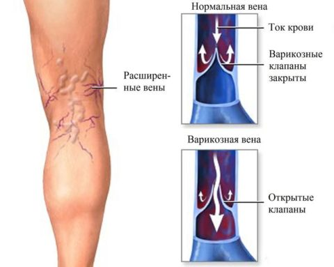 Схема работы клапанов и развития варикоза