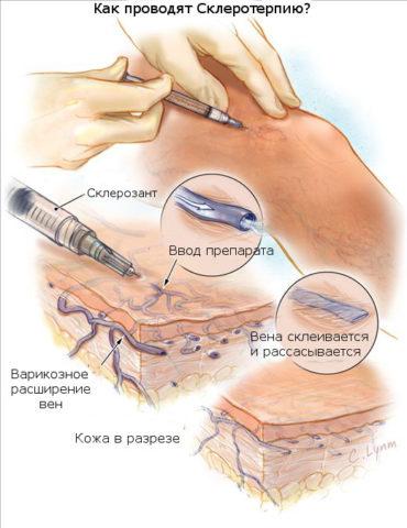 Склеротерапия – эффективный способ лечения поверхностных вен