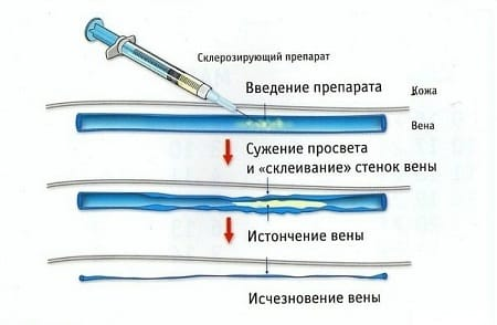 Склерозирование сосудов