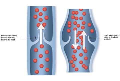 Варикоз развивается при нарушении нормального оттока крови по венам