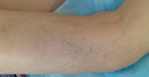 Венозная сеточка на коже доставляет много неприятностей