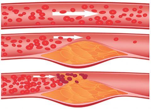Атеросклеротическая бляшка препятствует нормальному кровотоку