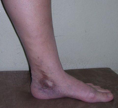Гнойное поражение ног