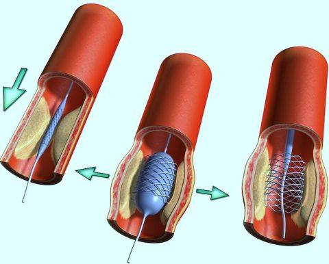 Как раздувается баллон в просвете артерии фото