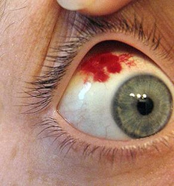 Кровоизлияние при воспалении