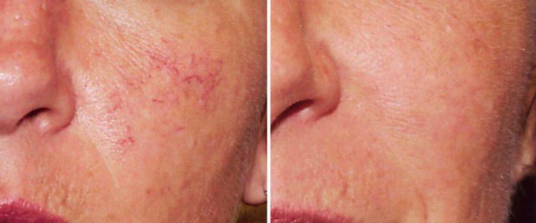 Красные капилляры на лице как избавиться в домашних условиях