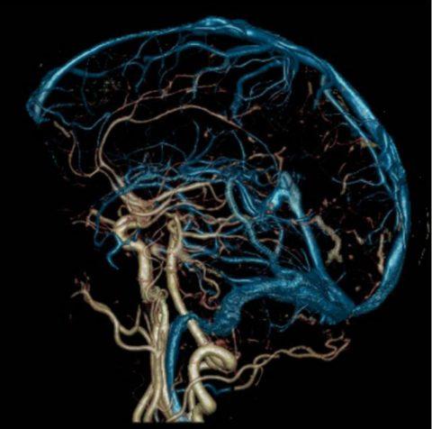 МРТ-ангиография сосудов мозга
