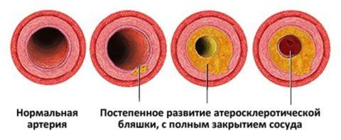 Постепенно атеросклероз вызывает полную закупорку артерий