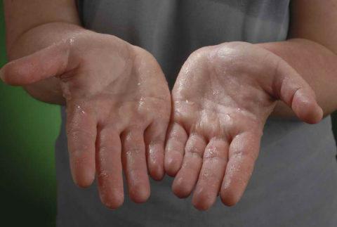 Постоянно влажные ладони (на фото) – один из распространенных проявлений ВСД