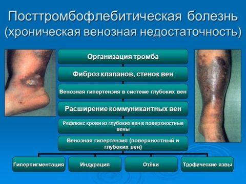 Посттромбофлебическая болезнь