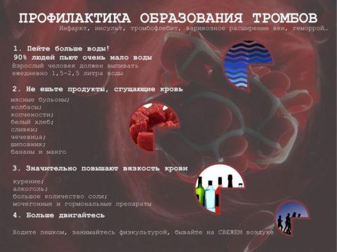 Профилактика появления тромбофлебита