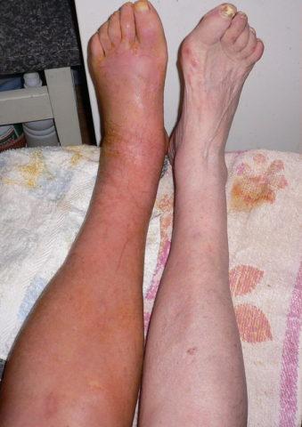 Разница между здоровой ногой и больной