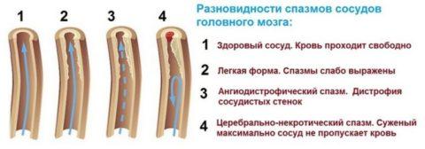 Разновидности спазмов