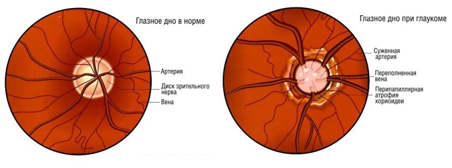 лечение гипертонической болезни стадиям