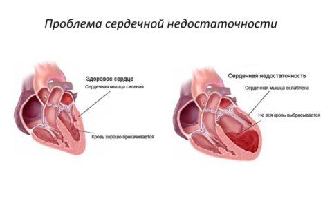 Сердце очень надёжный орган, но и он подвержен болезням