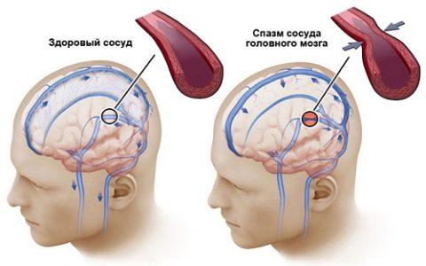 Состояние мозга