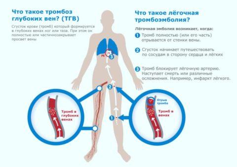 Тромбоз - опасное осложнение