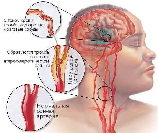Тромбоз и ишемия – частые осложнения  нарушения кровообращения мозга