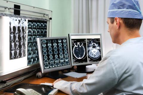 Визуальные методы диагностики позволят определить локализацию и степень сужения артерий головного мозга