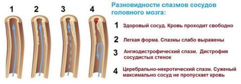 Выраженность симптомов зависит от степени выраженности патологии