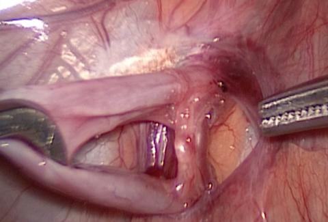 Забрюшинный доступ к пораженным венам при варикоцеле или его рецидиве