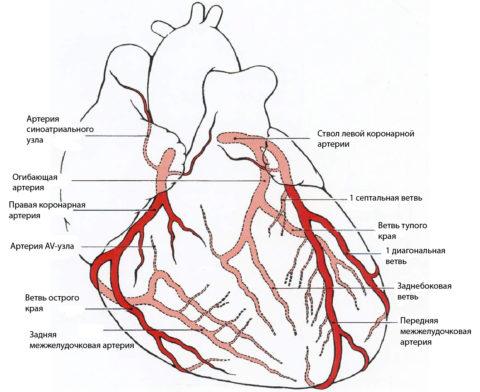 Закупорка венечных артерий – основная причина ИБС