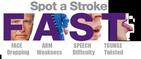 Заподозрить развитие инсульта можно по четырем признакам (на фото)