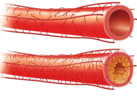 Здоровый сосуд и с холестериновыми отложениями