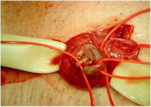 Фото варикозных сосудов семенного канатика пораженных
