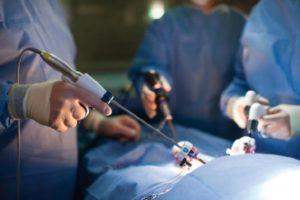 Эндоскопические методы лечения варикоцеле эффективны и безопасны