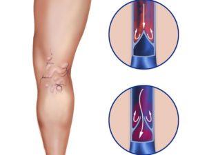 Наиболее типичная локализация варикозных вен – нижние конечности